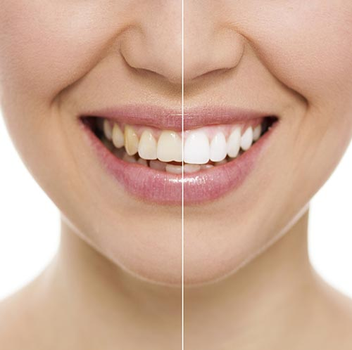 Teeth Whitening at Portola Smiles